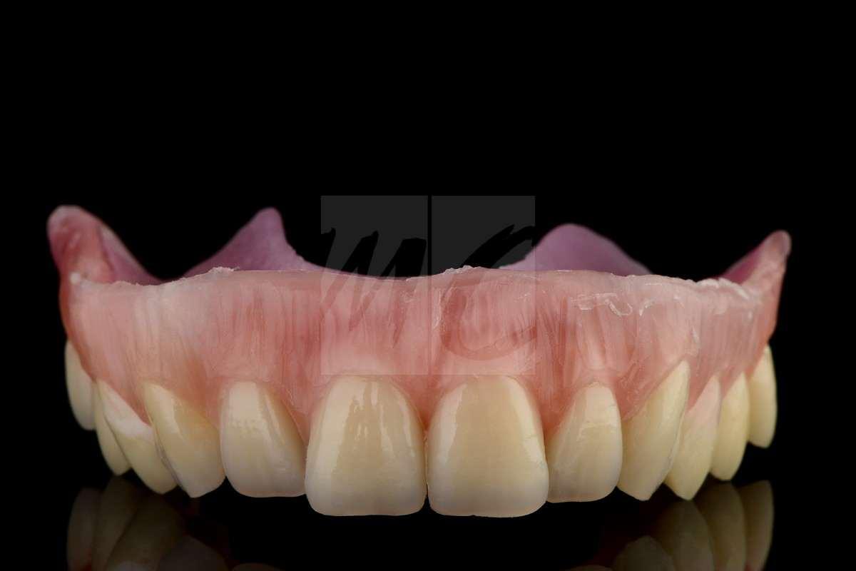 Kombinierte versorgung sauerhoff schüler dental technik gmbh