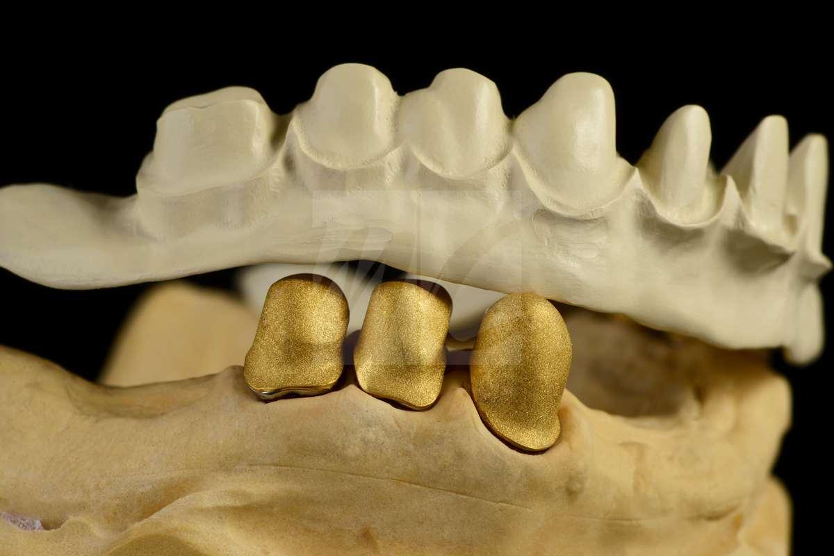 Teleskop prothese mit einzelkronen aus hybridkeramik 19 dentale