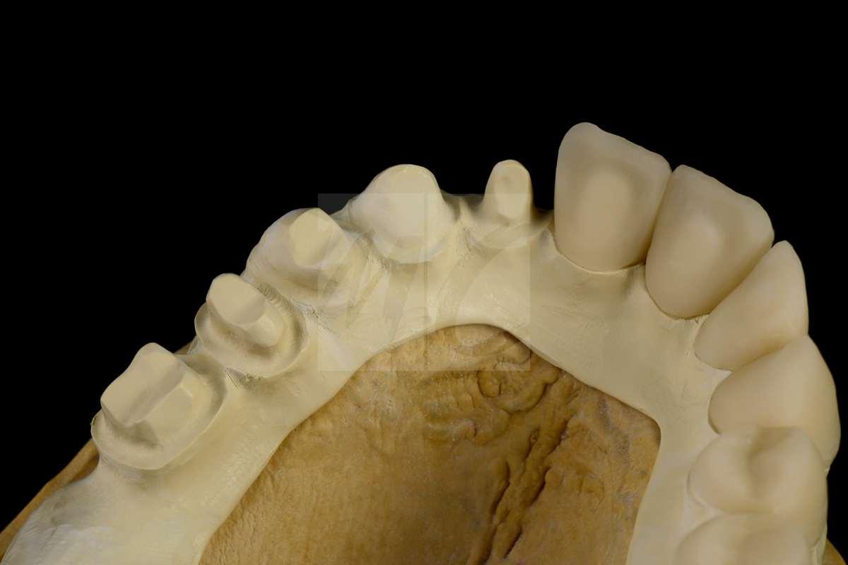 Teleskop prothese mit einzelkronen aus hybridkeramik dentale