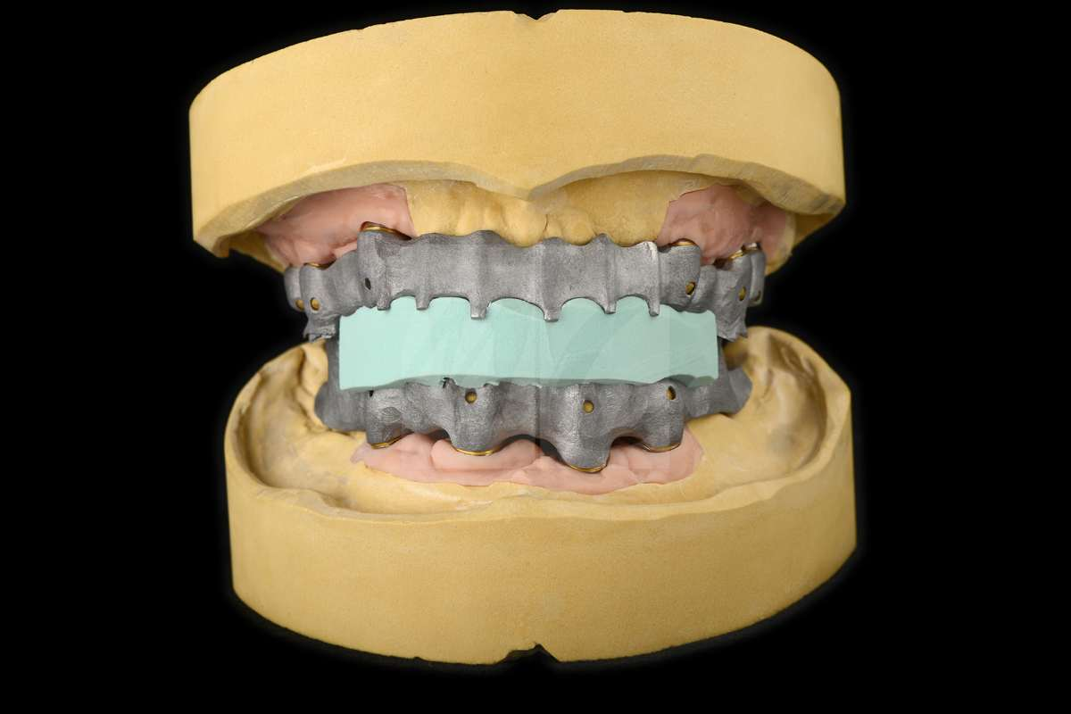 Teleskop prothese dentale bilder m c zahntechnik
