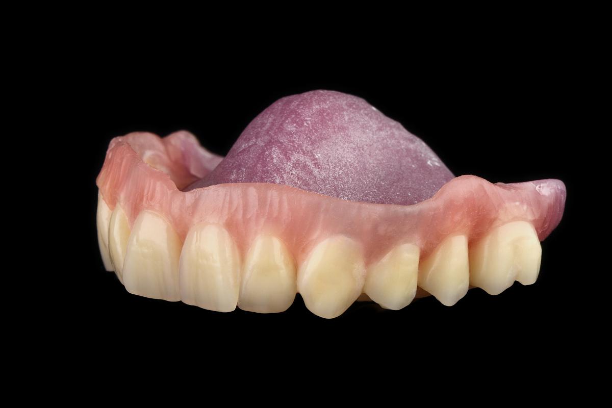Implantatgetragene teleskop prothese dentale bilder m c